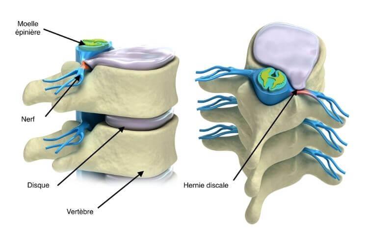 disque-intervertebral-disque-use-dos-que-faire-hernie-discale-soulager-un-ecrasement-du-disque-discopathie-hernie-discale-traitement-disque-lombaire-abime-disque-intervertebral-composition-disque-intervertebral-pince-disque-intervertebral-ecrase-pincement-discal-regonfler-les-disques-intervertebraux-hernie-discale-osteopathie
