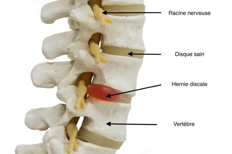 hernie-discale-traitement-hernie-discale-operation-hernie-discale-causes-hernie-discale-exercices-hernie-discale-bilaterale-hernie-discale-stress-hernie-discale-dos-traitement-hernie-discale-signification-pathologie-discale-discopathie-protrusive-discopathie-bombante-conflit-disco-radiculaire-pincement-discal-peut-il-disparaitre-hernie-discale-invalidite-nucleus-annulus-fibrosus