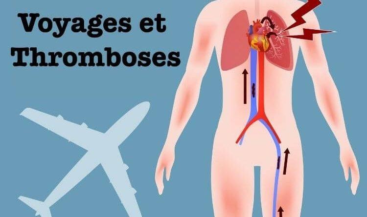vol-long-courrier-risque-de-phlebite-douleur-au-mollet-phlebite-thrombose-jambe-apres-un-grand-vol-en-avion-long-voyage-risque-caillot-dans-le-sang-pourquoi-phlebite-apres-voyage-embolie-pulmonaire-apres-long-vol-en-avion