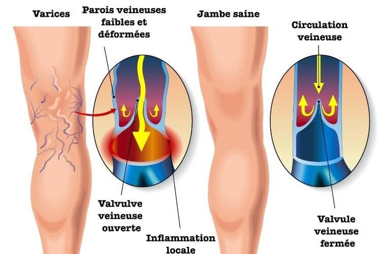 mecanisme-insuffisance-veineuse-pourquoi-mauvaise-circulation-des-jambes-que-gfaire-quand-on-a-une-mauvaise-circulation-des-jambes-valvules-veineuses-varices-varicosites-lourdeur-des-jambes-jambes-gonflees