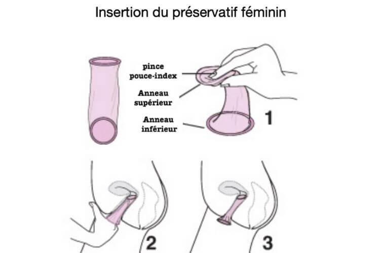 preservatif-feminin-explications-comment-mettre-preservatif-feminin-comment-enlever-preservatif-feminin-presentation-preservatif-feminin-anneaux-preservatif-feminin-insertion-vagin-preservatif-feminin